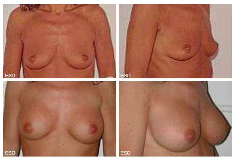 Hypotrophie mammaire après grossesse et allaitement