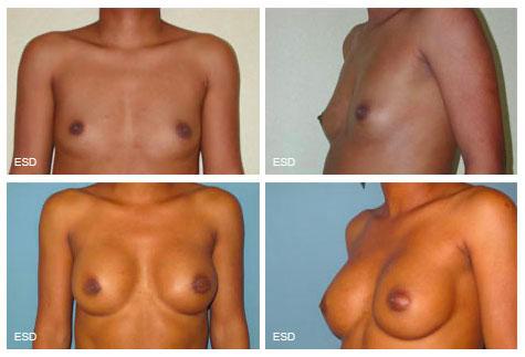 Augmentation mammaire