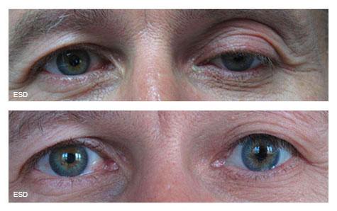 Orbite anophtalme oeil de verre
