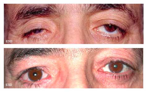 Oeil de verre orbite anophtalme