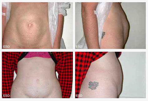 Abdominoplastie post grossesse