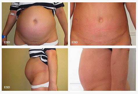 Abdominoplastie liposuccion femme