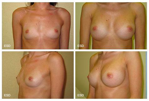 Augmentation de la poitrine hypotrophie mammaire majeure