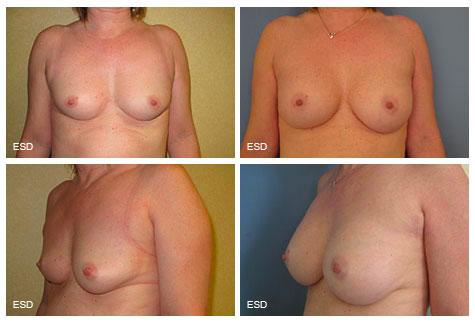 Augmentation mammaire par prothèses Patiente souhaitant améliorer l'aspect de sa poitrine. Correction par mise en place de prothèses mammaires en position rétro-glandulaire par voie axillaire