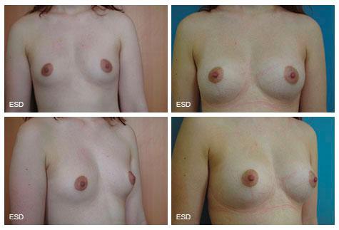 Augmentation mammaire par autogreffe de graisse