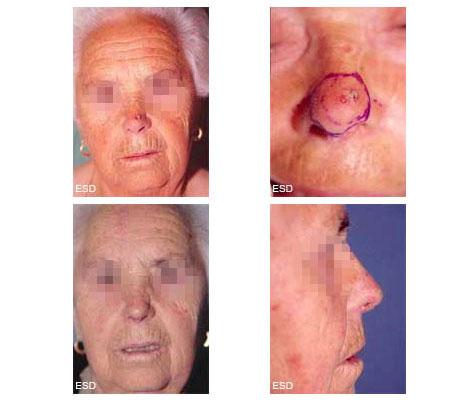 Reconstruction du nez après éxèrese pour carcinome, par lambeau cutané frontal et greffe de cartilage