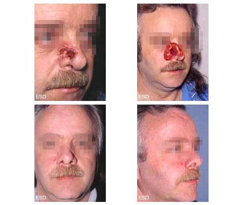 Reconstruction totale du nez éxèrese large pour carcinome, par lambeaux de muqueuse nasale, greffe de cartilage et lambeau cutané frontal