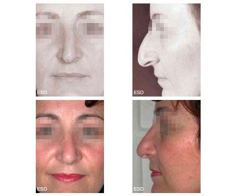 Rhinoplastie pour déviation nasale et bosse, post-traumatique