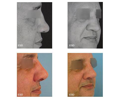 Reconstruction du nez par autogreffe costale positionnée par voie externe