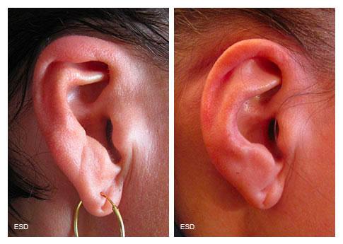 Otoplastie pour malformation congénitale du pavillon de l'oreille droite.
