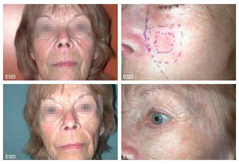 chirurgie du visage : Reconstruction jugale par lambeau après éxèrese pour carcinome cutané