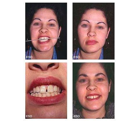 Asymétrie faciale majeure