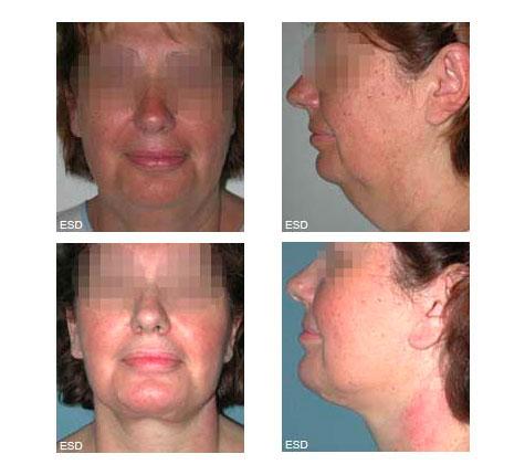 Lifting Cervico-facial (lifting du cou)