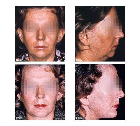Lifting Cervico-facial et génioplastie d'avancement