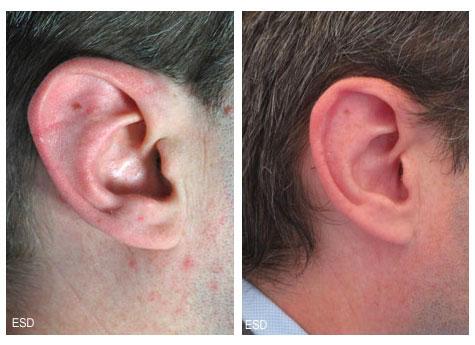 Diminution de la taille des oreilles