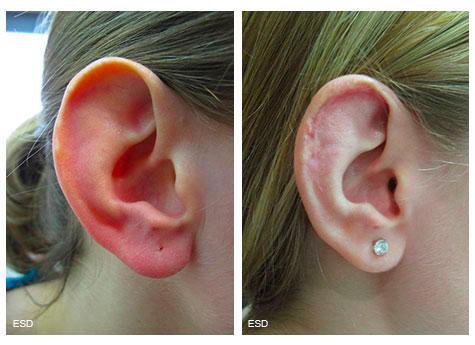 Otoplastie de réduction, diminution de la taille de l'oreille