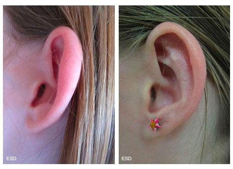 Opération pour oreilles décollées