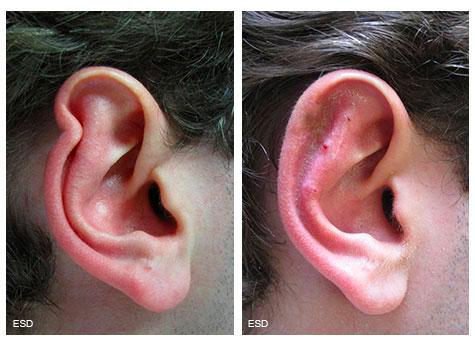 Reconstruction du pavillon de l'oreille par greffe de cartilage et lambeau cutané