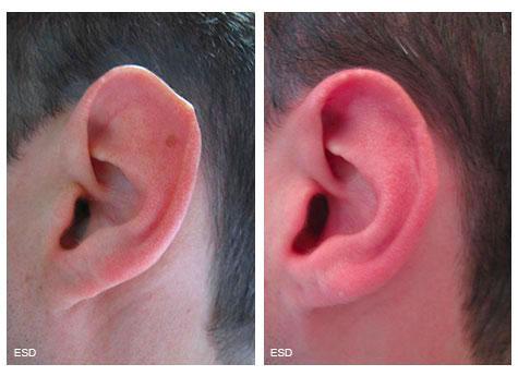 Otoplastie de réduction du pavillon de l'oreille